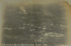 The Leprosy Colony in Cebu (Culion Museum and Archives)