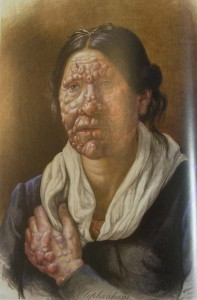 One of Losting's beautiful portraits of a woman in Bergen's Leprosy Asylum