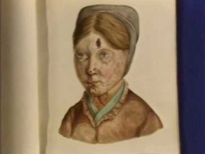 One of Losting's famous portraits of a woman with leprosy in , Bergen, Norway