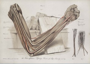 Dissection of the upper extremity of an arm, showing the nerve affected by Leprosy: illustration by Henry Vandyke Carter. Wellcome Library, London. http://wellcomeimages.org Licensed under CC BY 4.0 http://creativecommons.org/licenses/by/4.0/