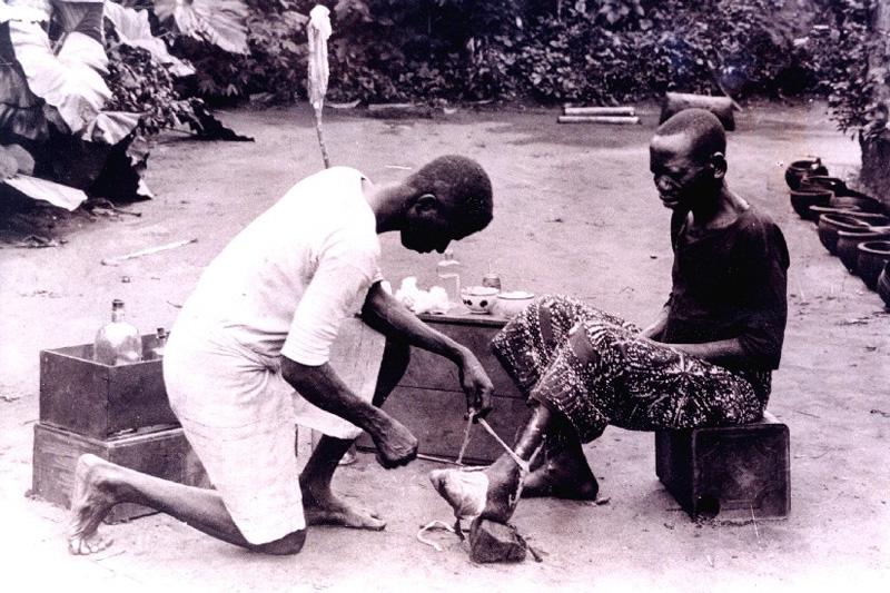 Ulcer care, Ekpene Obom, Nigeria, 1931